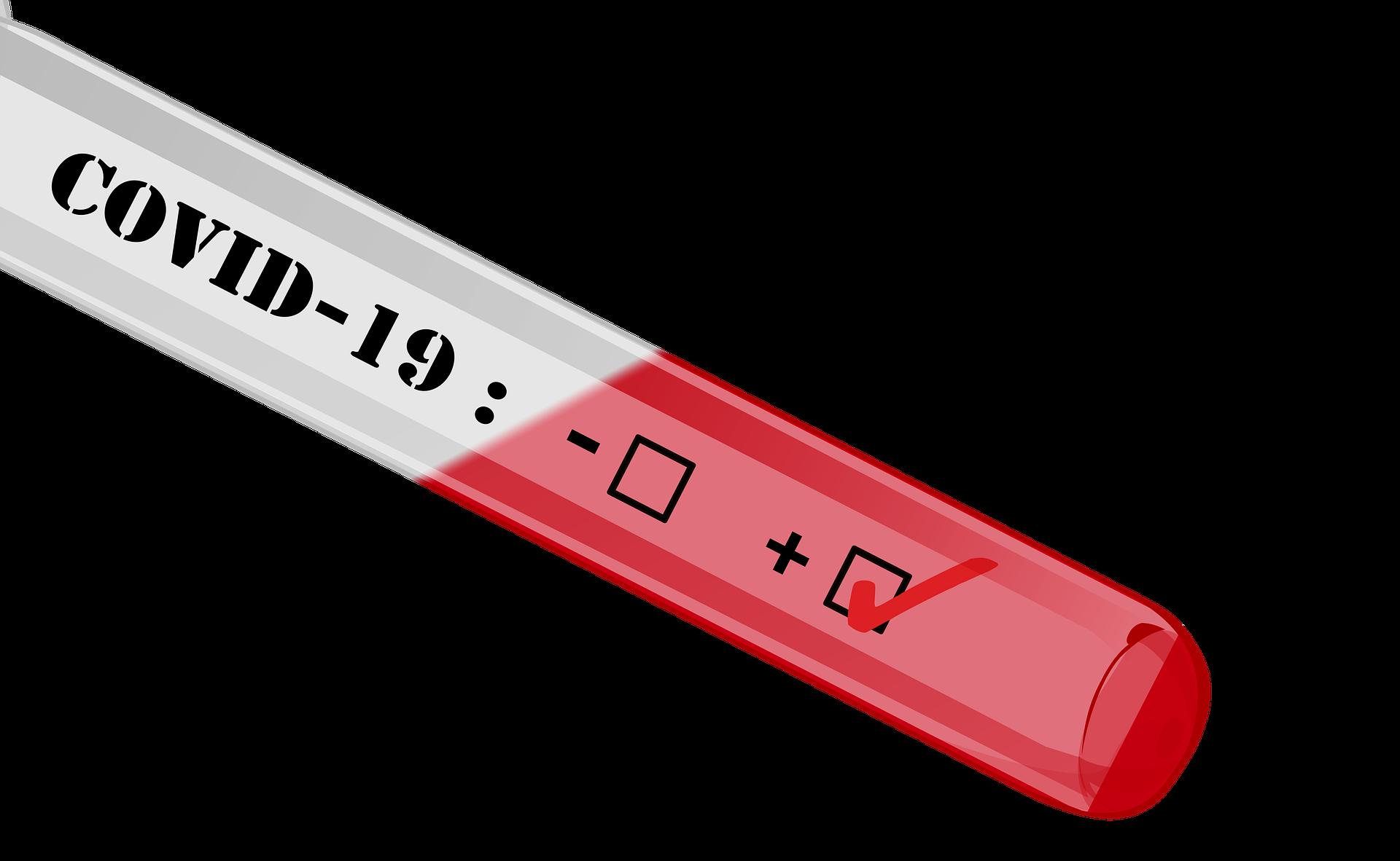Zamieszczamy listę laboratoriów wykonujących badania w kierunku wykrywania koronawirusa SARS-CoV-19.